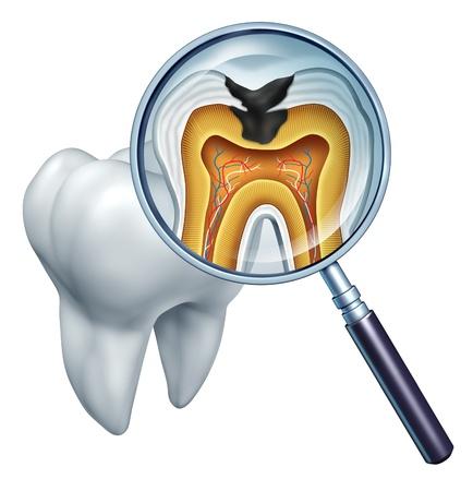 补牙,镶牙,种植牙?牙齿材料太多,该选哪种?要花多少钱