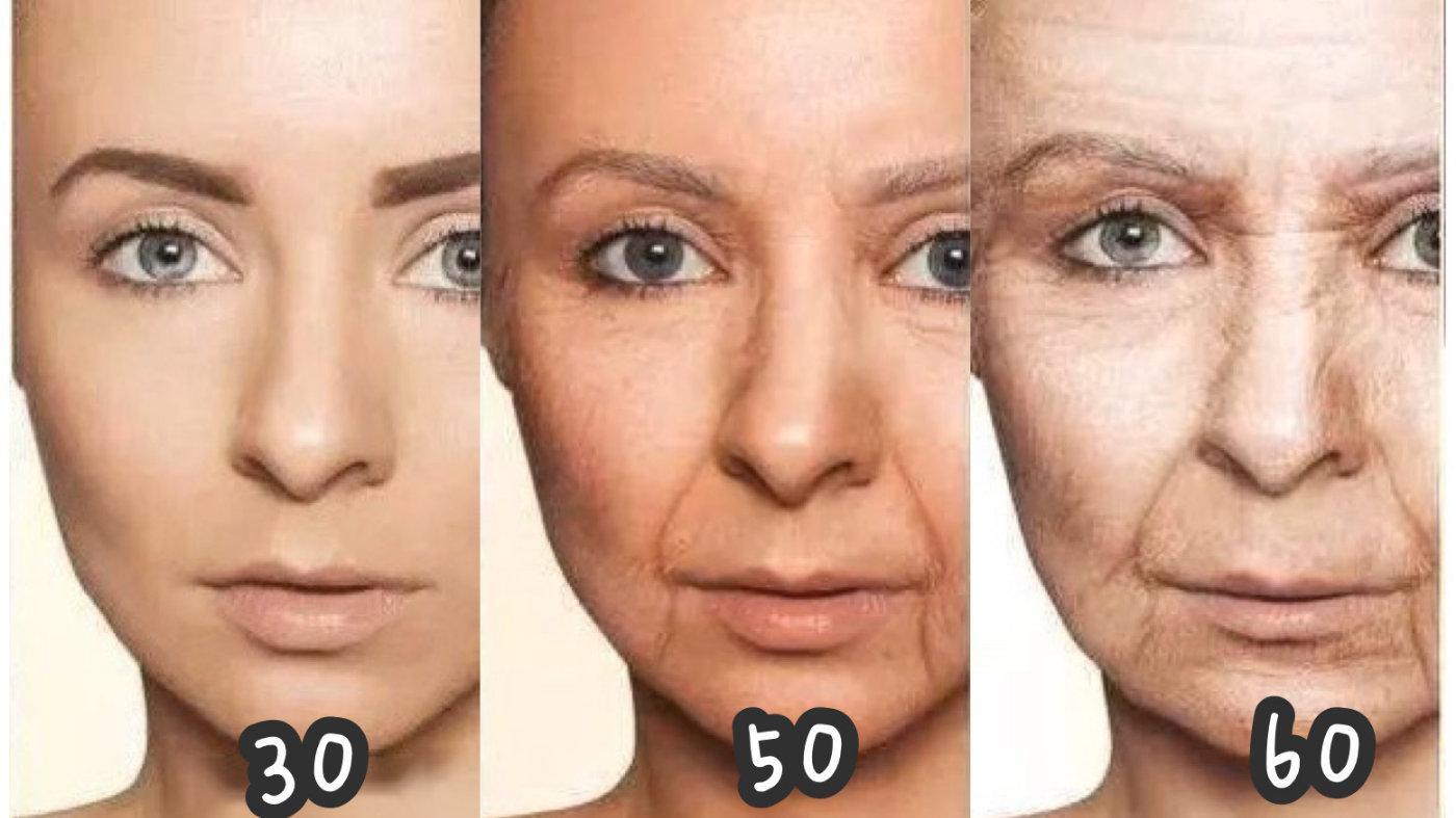 (图二)人中会随着年龄增加而越来越下垂