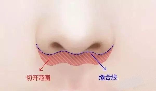 (图三)人中缩短的手术方式
