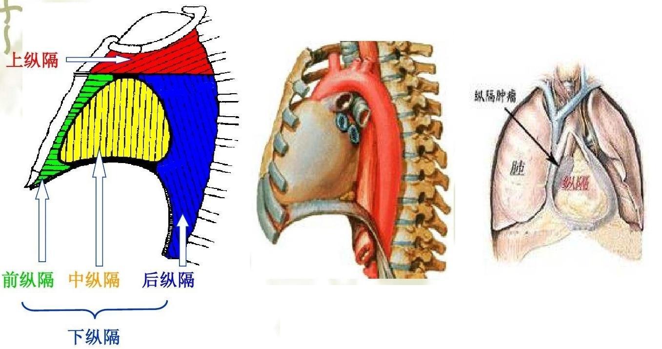 后背脂肪瘤图片